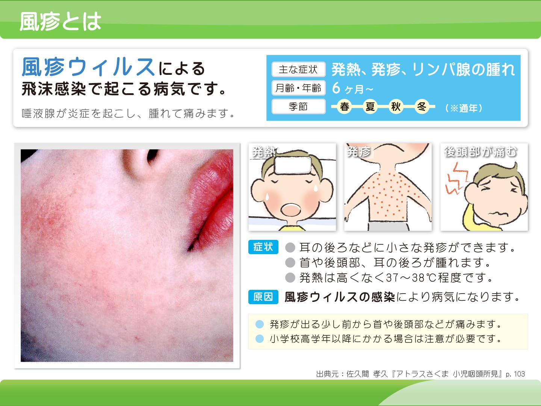 風疹とは 風疹ウィルスによる飛沫感染で起こる病気です。